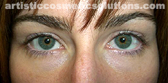 Permanent Eyeliner (Medium, Upper and Lower Eyelids)