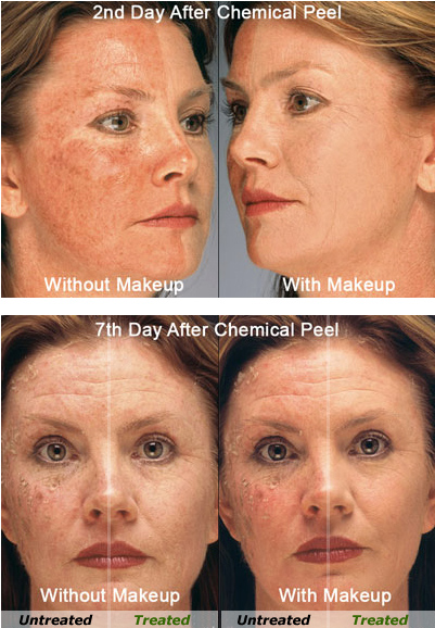 Acne Control Camouflage makeup