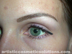 Permanent Eyebrow Completion (Hairstroke Technique)