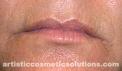 Upper Lip Wrinkle Treatment With Needling