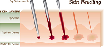 Dermal Micro Needling