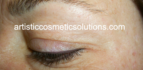 Permanent Eyeliner Both Eyelids (Medium-Upper, Thin-Lower)
