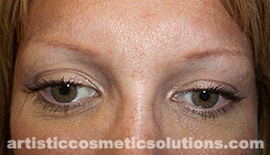 Color and Shape Correction of Tattooed Eyebrows