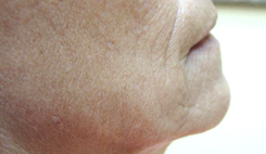 Facial Wrinkle Treatments