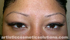 Color and Shape Correction of Permanent Eyebrows