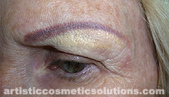 Flesh Colored Pigment Tattooed Over Permanent Eyebrow Mistakes