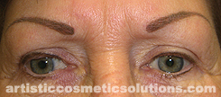 Permanent Makeup Correction