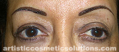 Shape and Color Adjustment of Permanent Eyebrows