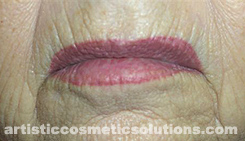 Permanent Makeup Removal
